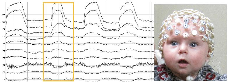 CVPR 2017论文精选#3 不可思议的研究: EEG脑电波深度学习在视觉分类中的应用